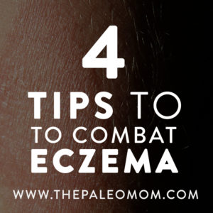 The-Paleo-Mom-4-Tips-to-Combat-Eczema