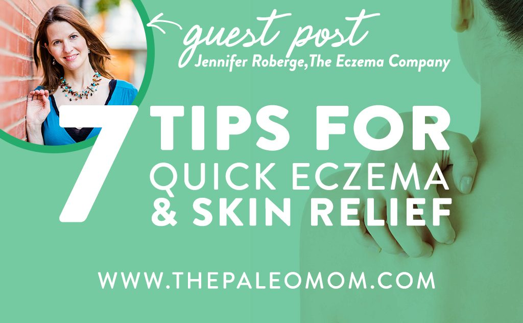 7 Tips for Quick Eczema and Itchy Skin Relief - Guest Post by Jennifer Roberge