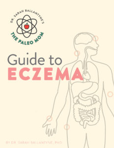 Guide to Eczema