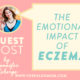 the emotional impact of eczema